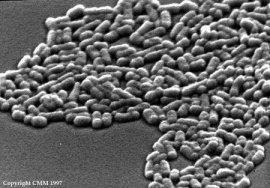e-coli_med.jpg
