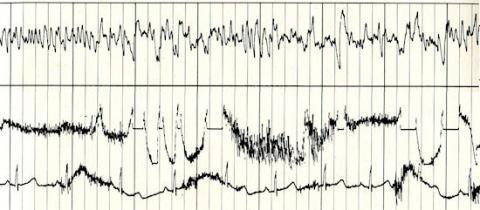 Golden Record (Ann's Brain Waves, 550px)