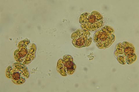 Microscope photo of cells