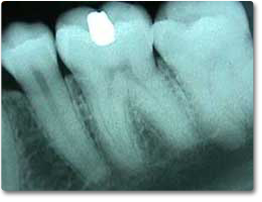 An x-ray image of teeth