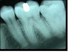 An x-ray image of teeth